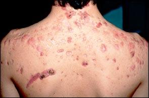 cistične akne, posledice nezdravljenih aken
